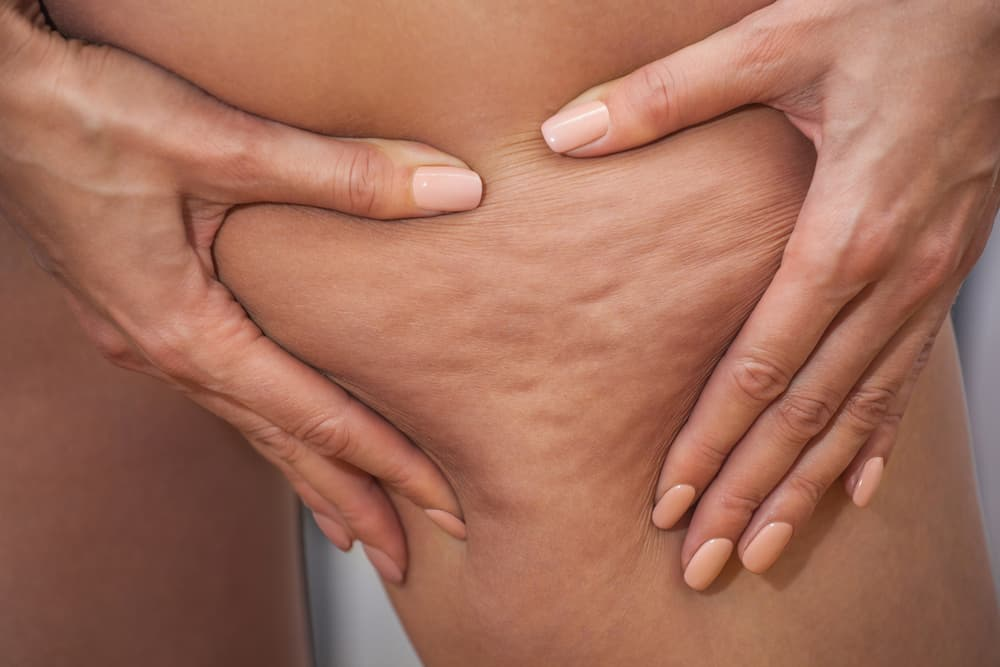 Does Cellulite Removal Cream Really Work